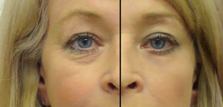 eye secrets under eye tightener
